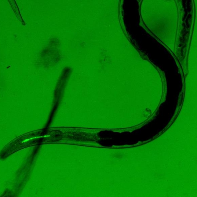Slug-killing nematode with fluorescing bacteria.jpg
