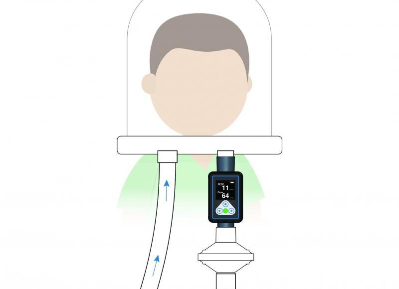 PEEP-Alert System Image